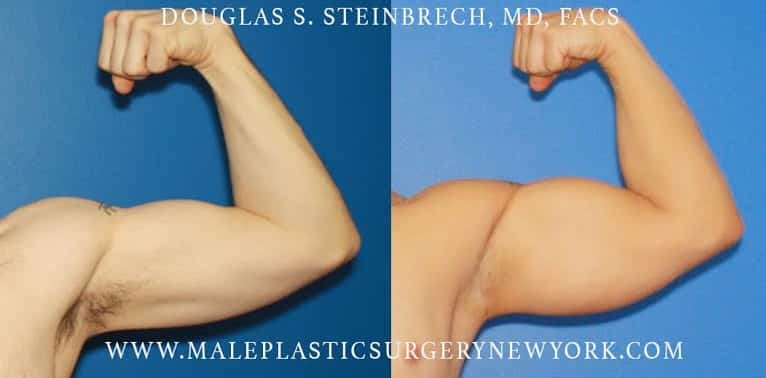Body banking for bicep augmentation by Dr. Steinbrech