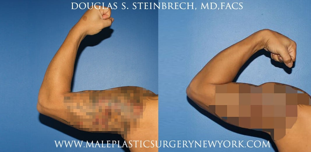 Bicep implants for upper arm augmentation by Dr. Steinbrech