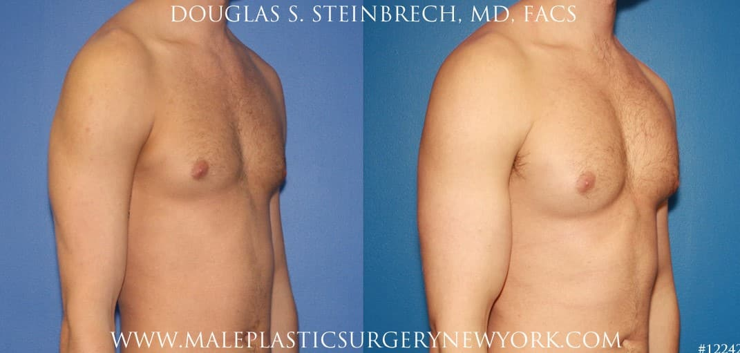 Bicep implants to augment the upper arm by Dr. Steinbrech