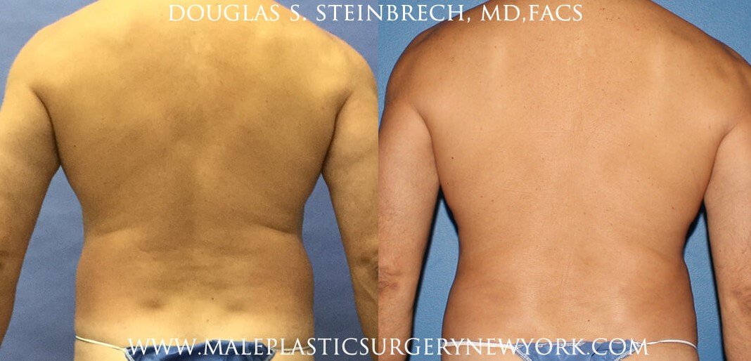 Body banking for contouring the upper body by Dr. Steinbrech