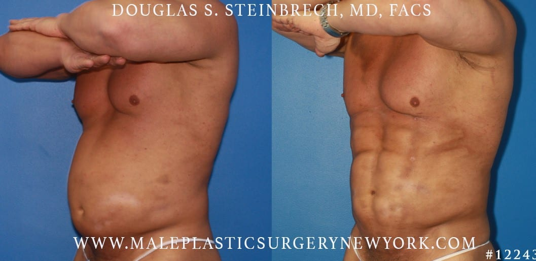 Gladiator abs and body banking by Dr. Steinbrech