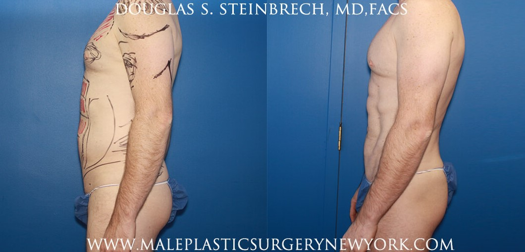 Body banking with fat transfer for body contouring and bicep augmentation by Dr. Steinbrech