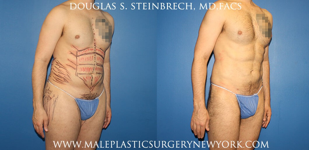 Body banking with gluteal augmentation by Dr. Steinbrech