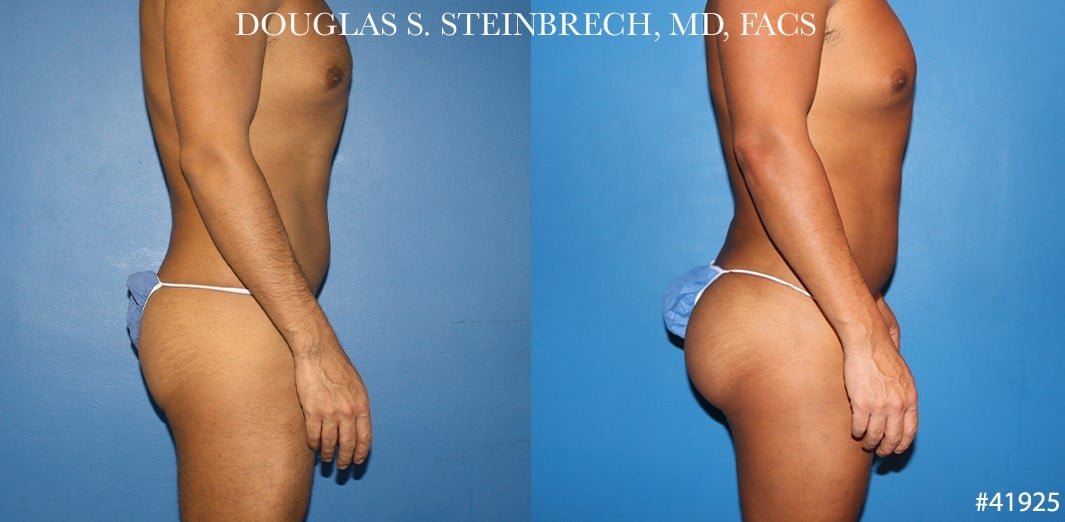 Body banking with gluteal implants for buttock enhancement by Dr. Steinbrech