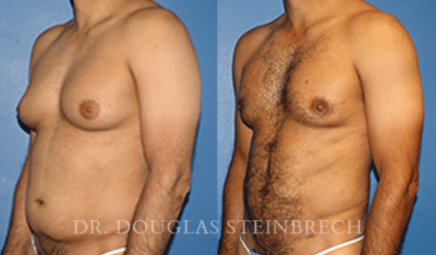 Body banking with gynecomastia treatment by Dr. Steinbrech