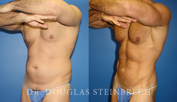Body banking with high definition liposuction by Dr. Steinbrech