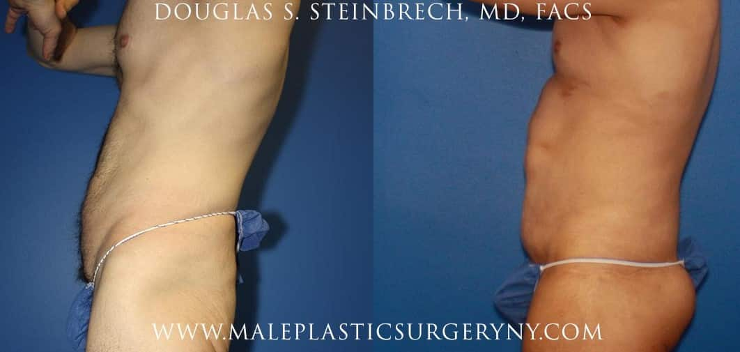 Body lift for upper body contouring by Dr. Steinbrech