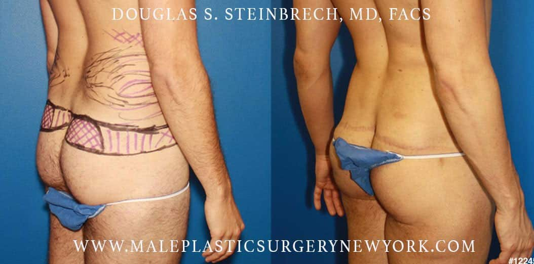 Body lift to enhance the buttocks by Dr. Steinbrech