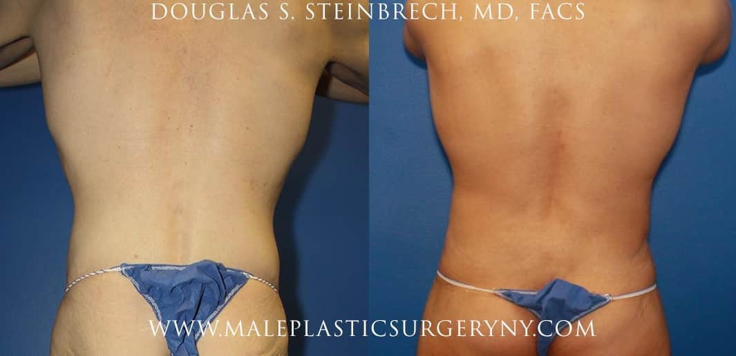 Body lift for sculpting the torso by Dr. Steinbrech