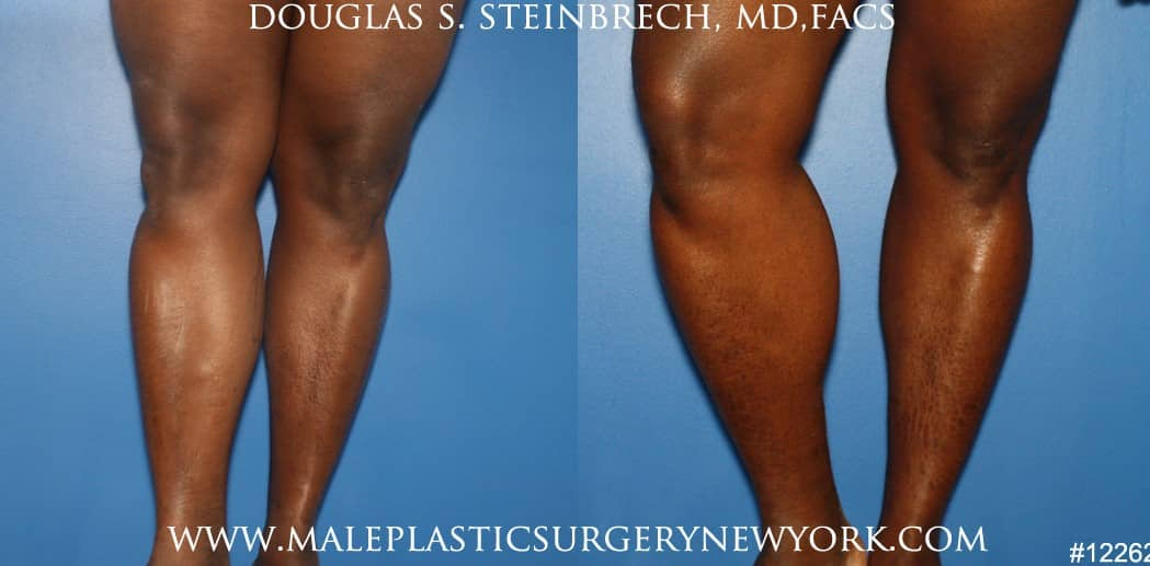 Calf augmentation using implants by Dr. Steinbrech