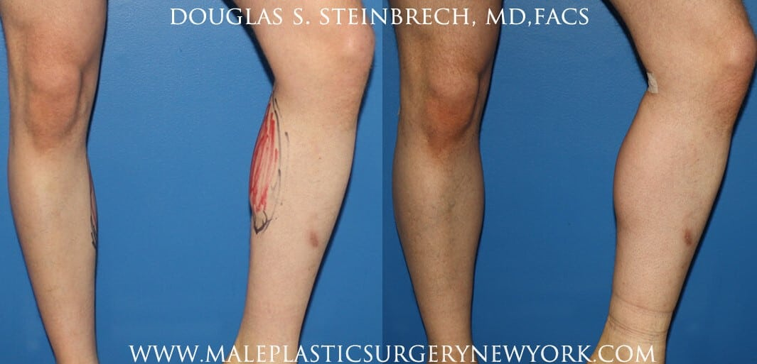 Calf augmentation with implants by Dr. Steinbrech