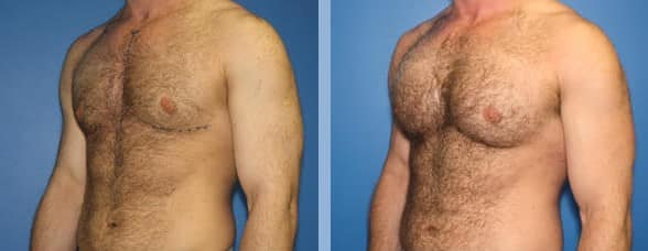 Chest augmentation using pectoral implants by Dr. Steinbrech