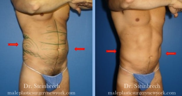 Daddy do over for body contouring by Dr. Steinbrech