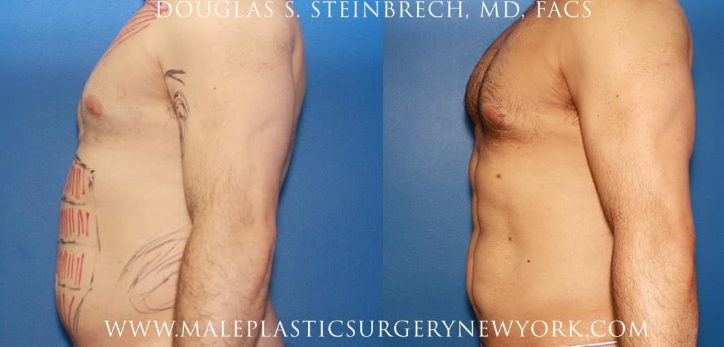 Gladiator abs and body banking for bicep augmentation by Dr. Steinbrech