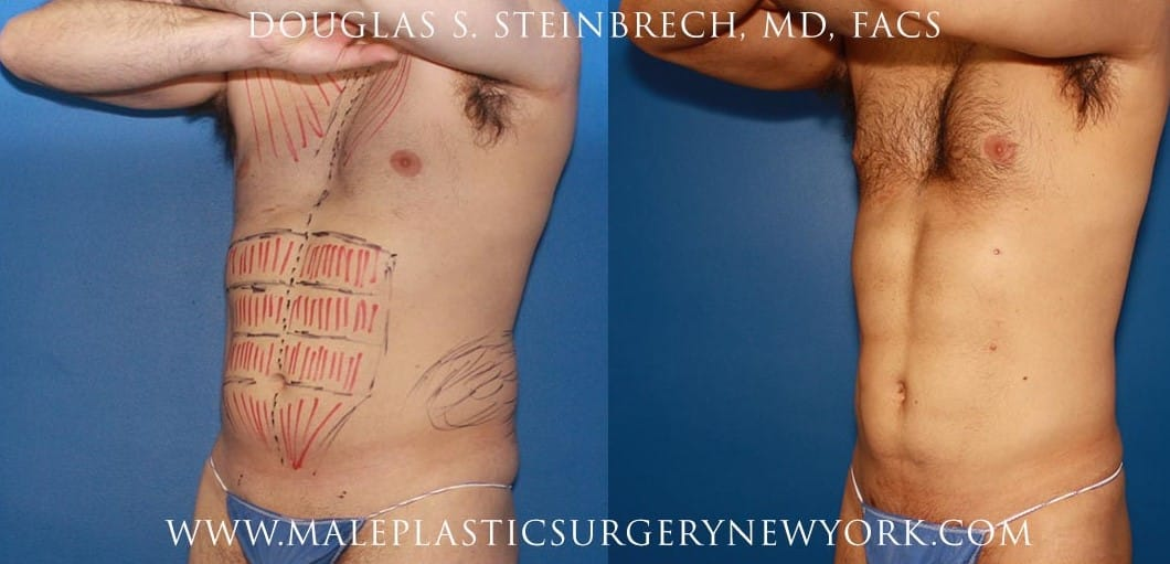 Gladiator abs for body contouring by Dr. Steinbrech