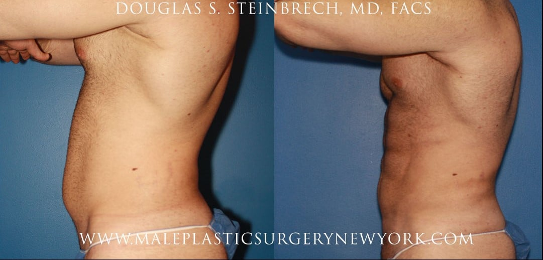 Gladiator abs for body sculpting by Dr. Steinbrech