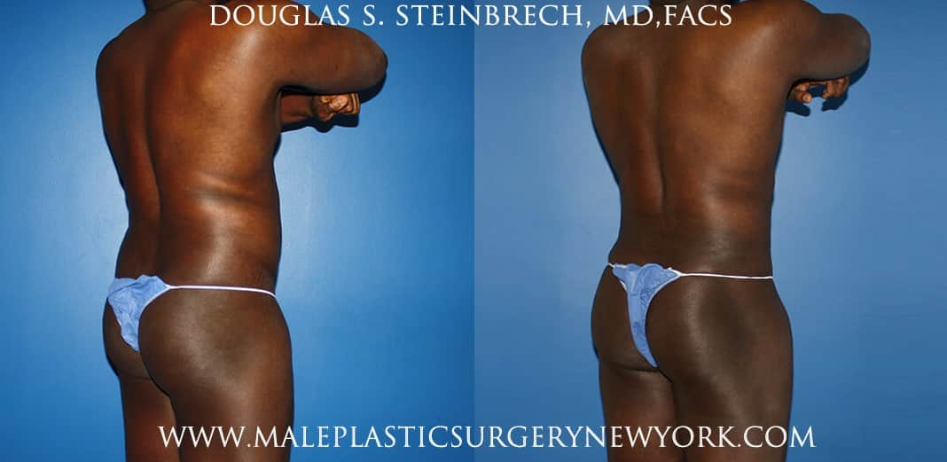 Gladiator abs and quarterback buttock lift by Dr. Steinbrech