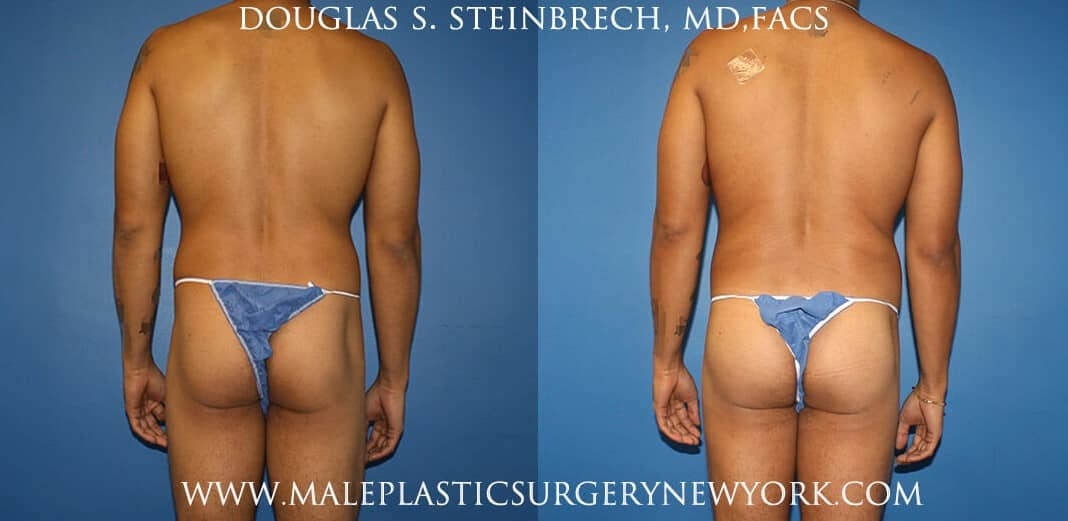 Gluteal augmentation with implants and body banking by Dr. Steinbrech