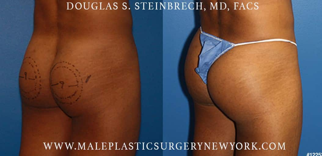 Gluteal augmentation to shape the buttocks by Dr. Steinbrech