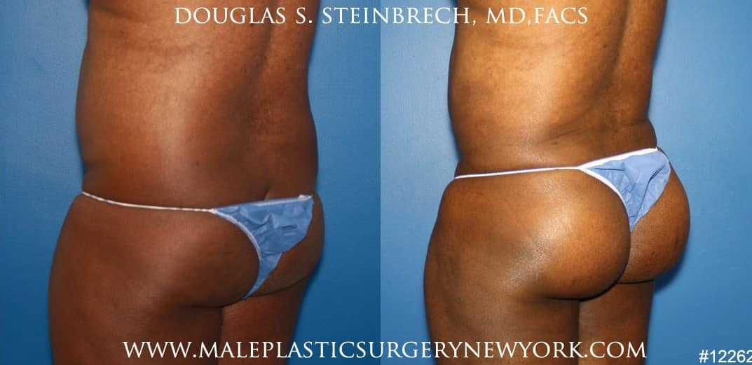 Gluteal augmentation for rounder buttocks by Dr. Steinbrech