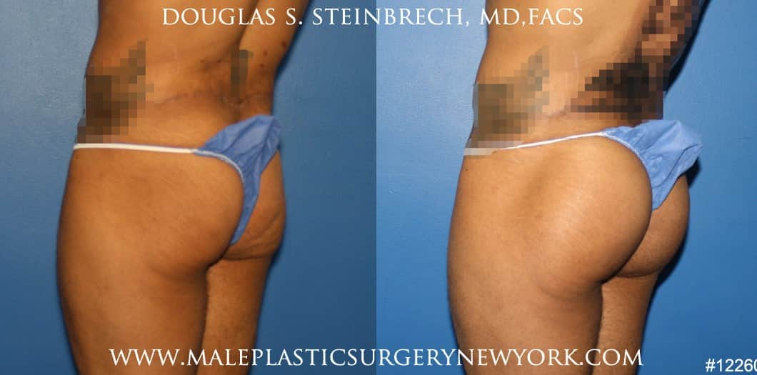 Gluteal augmentation for buttock shaping by Dr. Steinbrech