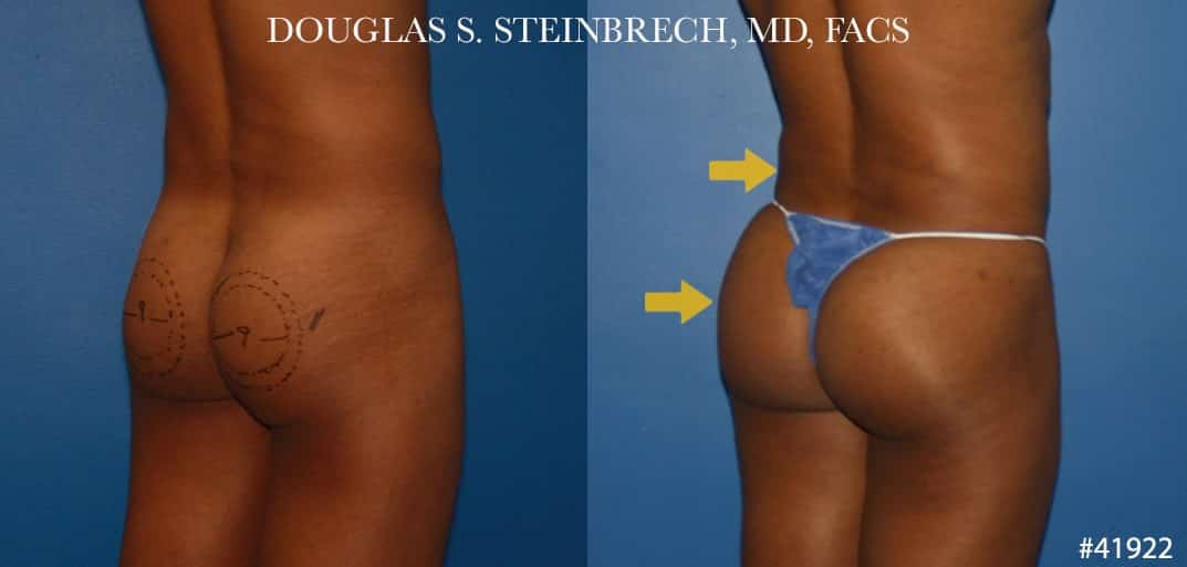 Gluteal augmentation revision to enhance the buttocks by Dr. Steinbrech