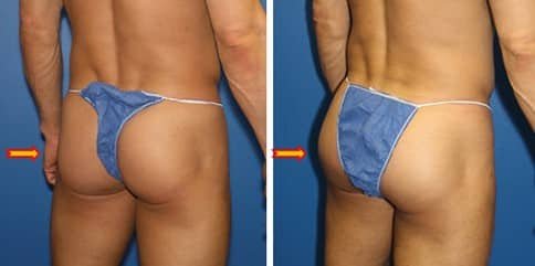 Gluteal augmentation with implant by Dr. Steinbrech