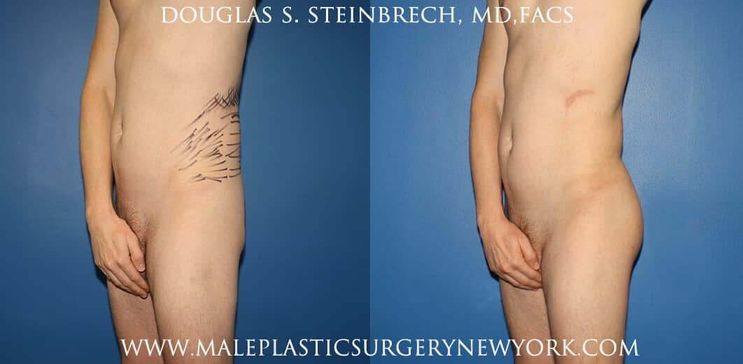 Gluteal implants with fat injections and liposuction by Dr. Steinbrech