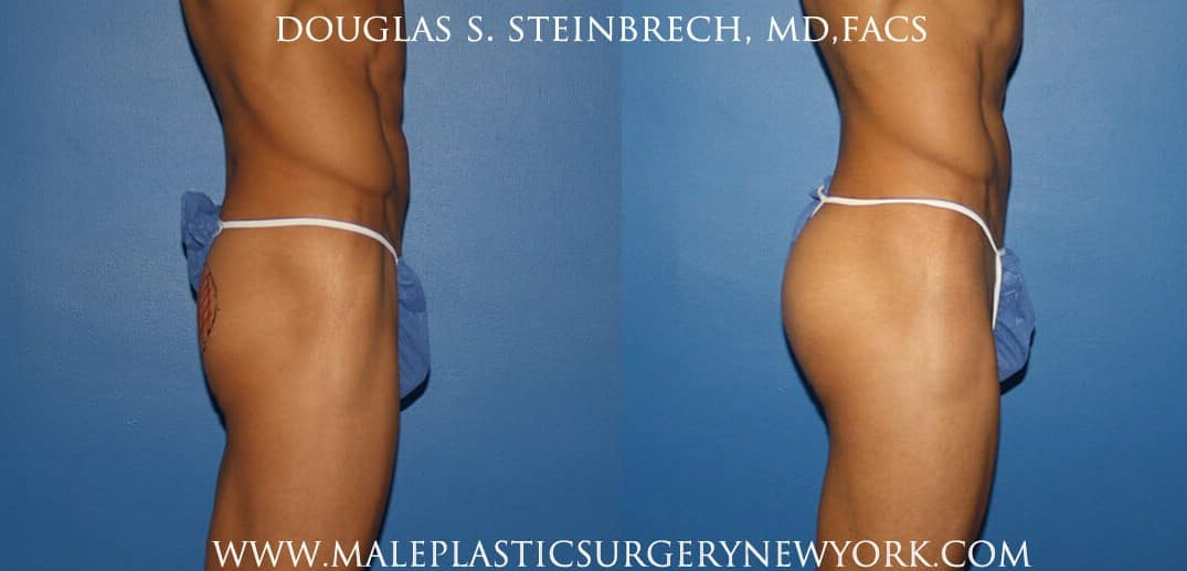 Gluteal augmentation for fuller buttocks by Dr. Steinbrech