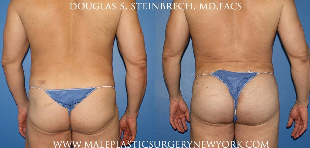 Gluteal implants with liposuction and fat injections by Dr. Steinbrech