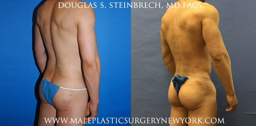 Gluteal implants for buttock augmentation by Dr. Steinbrech