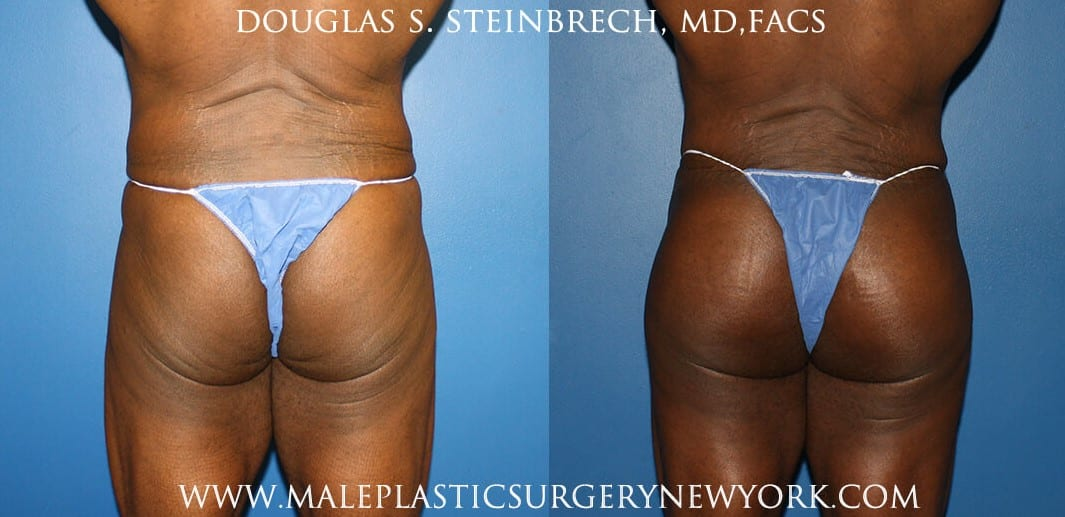 Gluteal implants to shape the buttocks by Dr. Steinbrech
