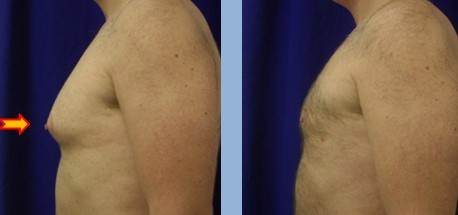 Gynecomastia treatment to reduce male breasts by Dr. Steinbrech