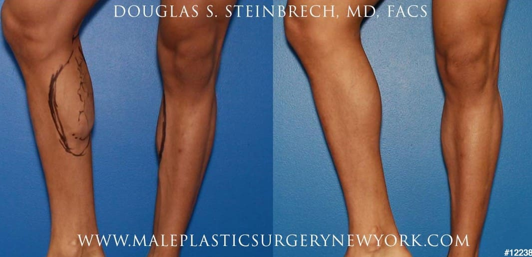Implants for calf augmentation by Dr. Steinbrech