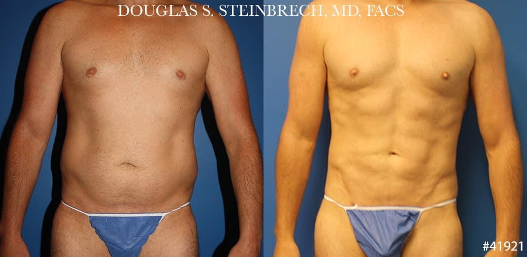 Liposuction with body banking to enhance the torso by Dr. Steinbrech