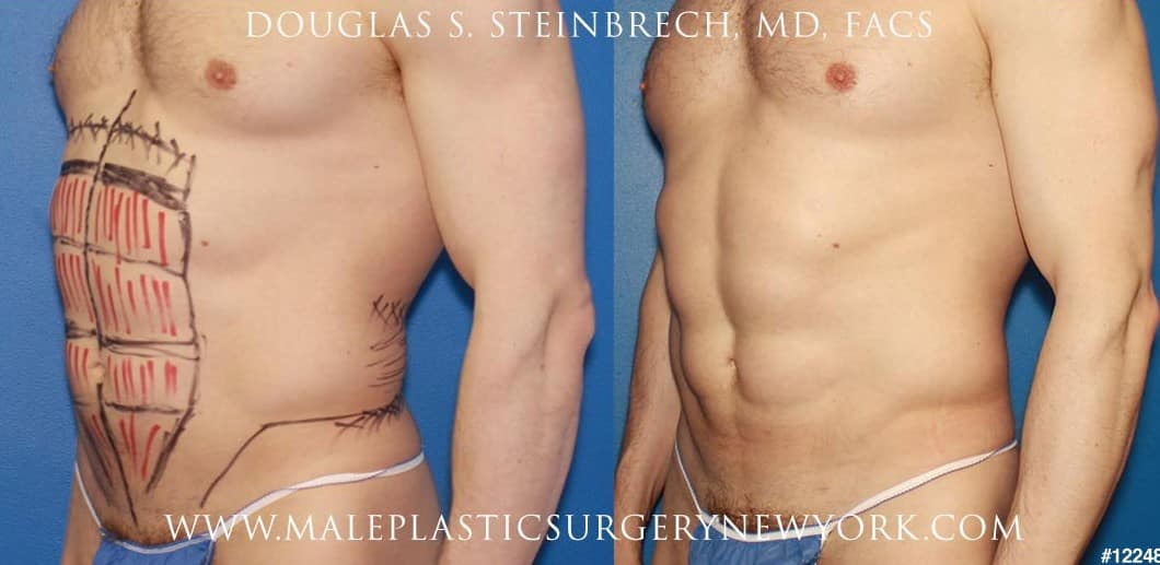Liposuction for surfer abs by Dr. Steinbrech