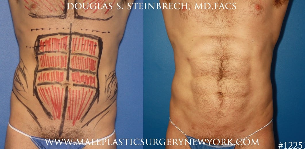 Liposuction to create surfer abs by Dr. Steinbrech