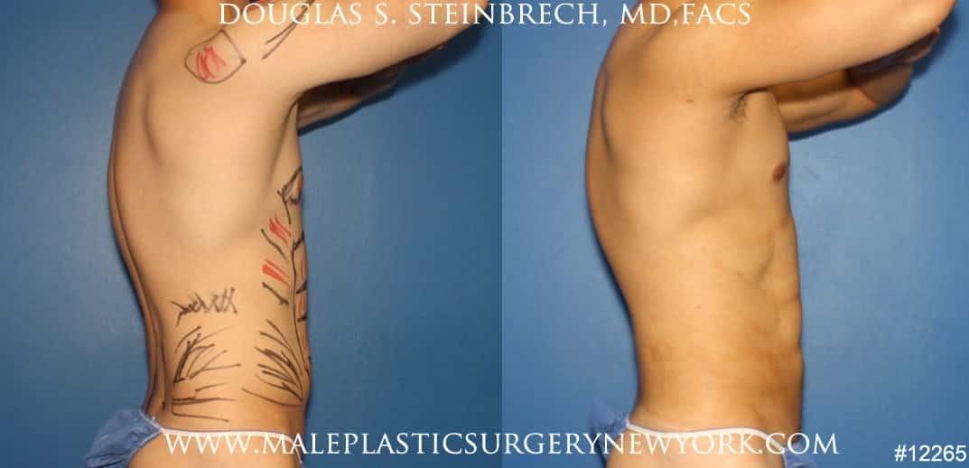Liposuction to sculpt surfer abs by Dr. Steinbrech