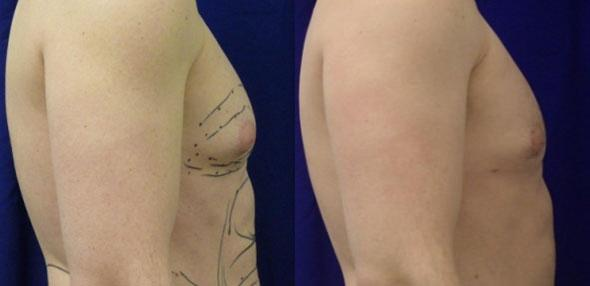 Liposuction to treat gynecomastia by Dr. Steinbrech