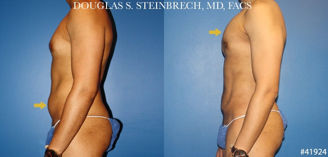 Liposuction with body banking to sculpt the torso by Dr. Steinbrech