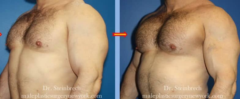 Pectoral implants for chest augmentation by Dr. Steinbrech