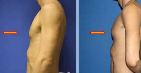 Pectoral implant to augment chest by Dr. Steinbrech