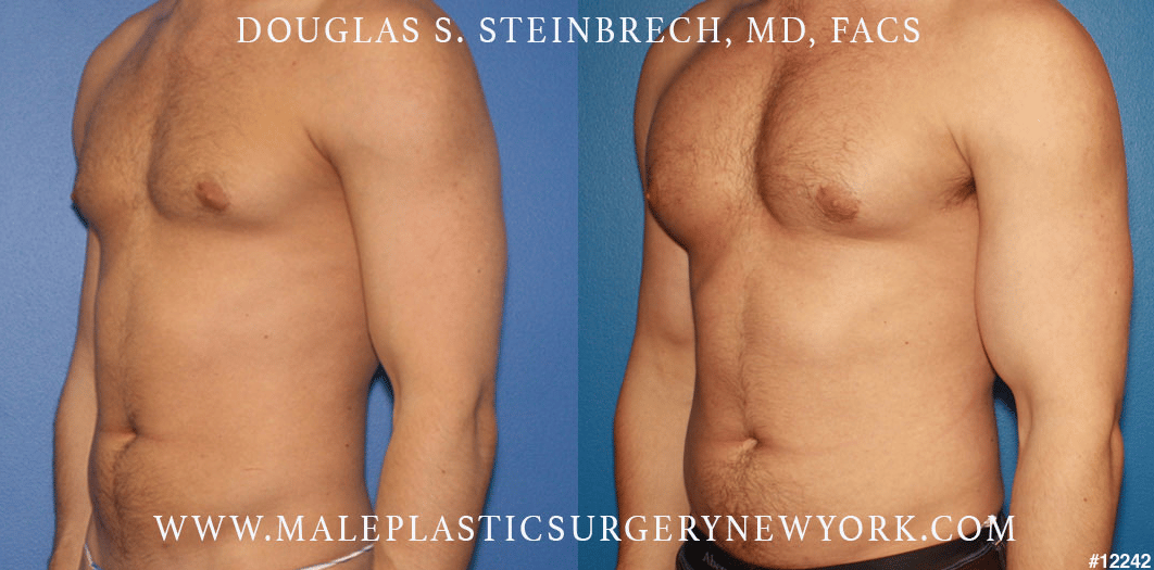 Pectoral and bicep implants for upper body augmentation by Dr. Steinbrech