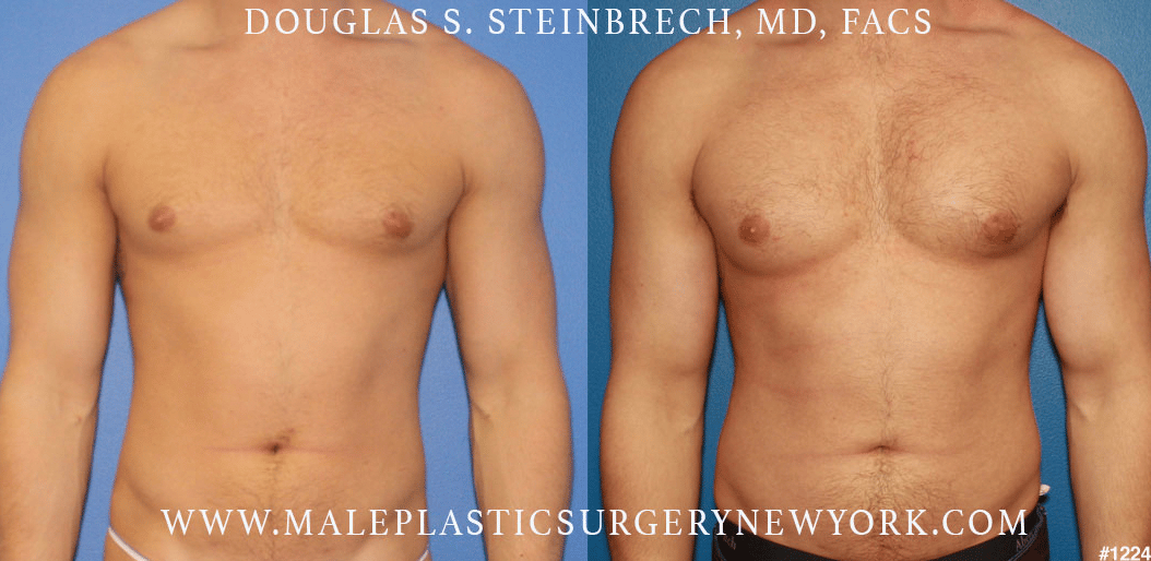 Pectoral and bicep implants for chest augmentation by Dr. Steinbrech