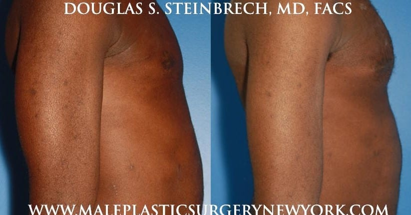 Pectoral implants for chest enhancement by Dr. Steinbrech