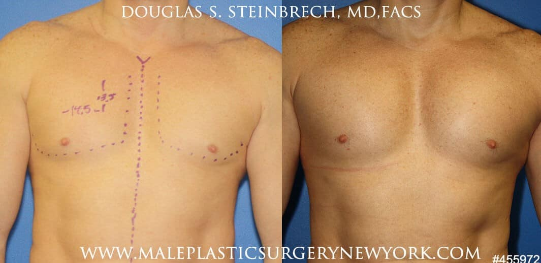 Pectoral implants to augment the chest by Dr. Steinbrech