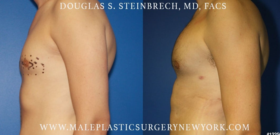 Pectoral implants to sculpt the chest by Dr. Steinbrech