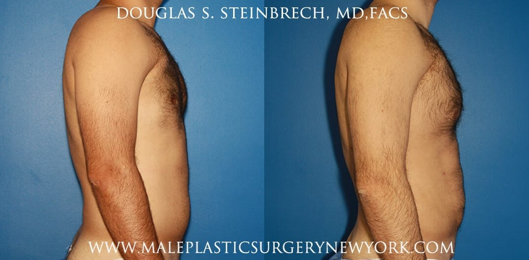 Chest augmentation to treat Poland Syndrome by Dr. Steinbrech