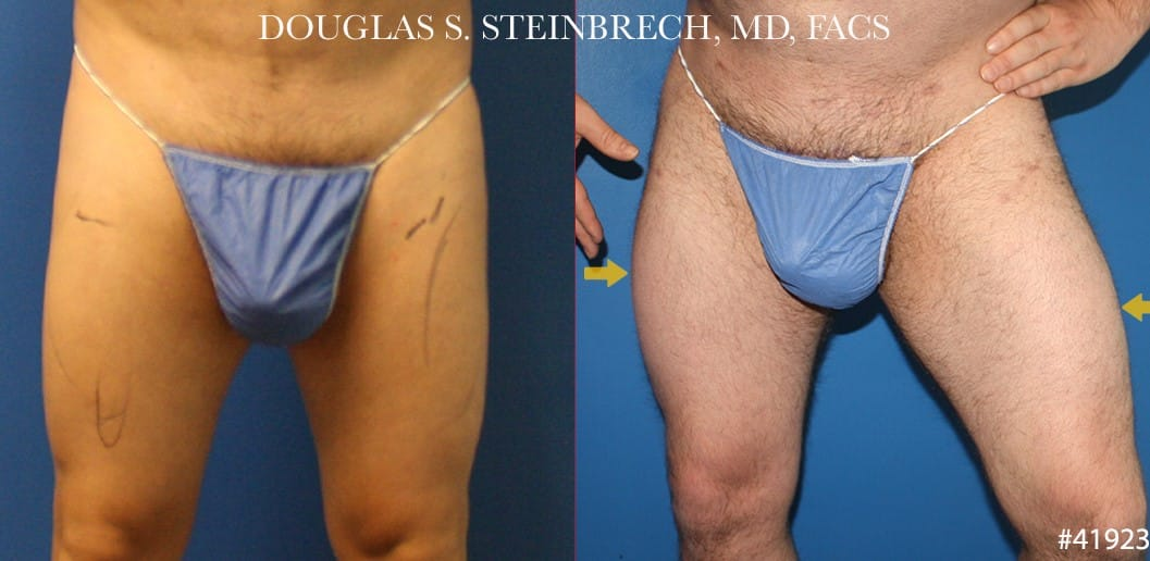 Quad augmentation to enlarge thighs by Dr. Steinbrech