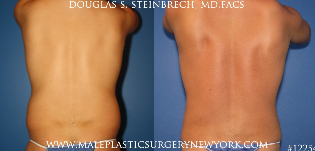 Surfer abs using liposuction by Dr. Steinbrech